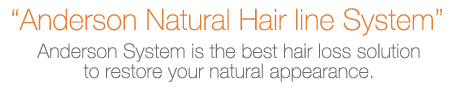 """ Anderson Natural Hair line System""   Anderson System is the best hair loss solution to restore your natural appearance."