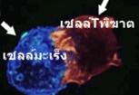 พิชิดมะเร็งร้ายด้วยเซลล์ทีพิฆาต
