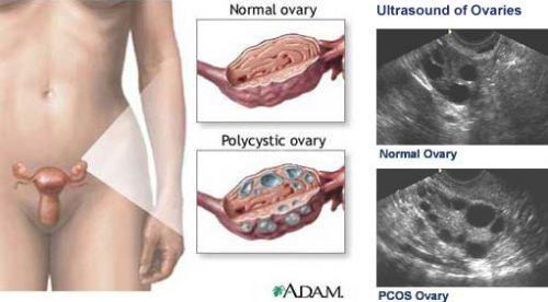 ภาพแสดงอาการของโรคPCOS