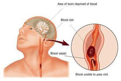 บทความสาระน่ารู้:-การแพทย์แผนไทยและแพทย์ทางเลือกในการรักษาผู้ป่วยอัมพฤกษ์ อัมพาตจากโรคหลอดเลือดสมอง