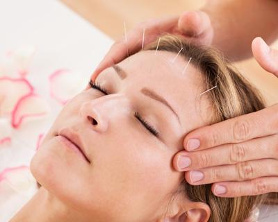 บทความสาระน่ารู้:-ฝังเข็ม (Acupuncture) ทางเลือกรักษาไมเกรน แค่จิ้มครั้งแรกก็เอาอยู่!