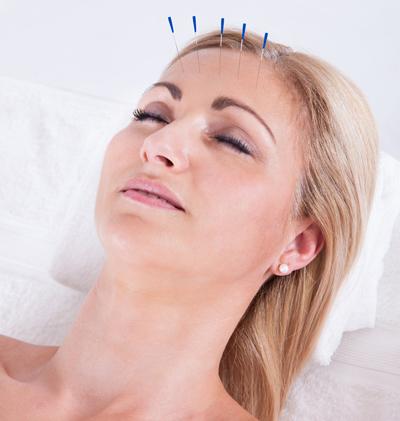 บทความสาระน่ารู้:-ฝังเข็ม (Acupuncture) ผิวสวย หน้าใส หน้าเด้ง อย่างยั่งยืน