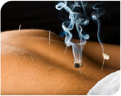 บทความสาระน่ารู้:-เทคนิคการฝังเข็ม (Acupuncture) และการรมยา